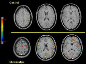 Neuroimagen de la fibromialgia